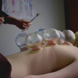 Cupping Chinese Medicine